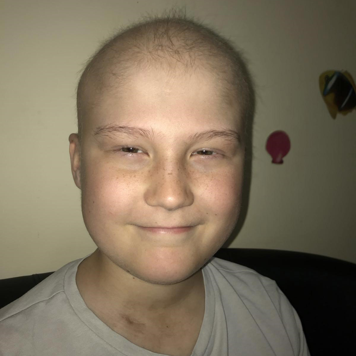 Oliver Doughty during his cancer treatment
