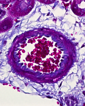 Clinical Research On Haematological And Mpn Cancer Cruk Cc