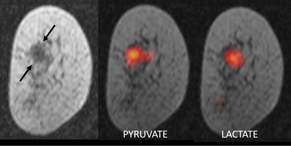 Standard MRI scan of breast tumour (left) compared with hyperpolarised carbon-13 MRI scans highlighting pyruvate (centre) and lactate (right)
