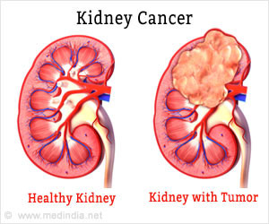 Clinical Research On Kidney Cancer Cruk Cc