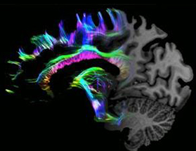 In Developing Brain Scientists Find >> Multi Million Pound Boost For Cambridge Scientists To Find New