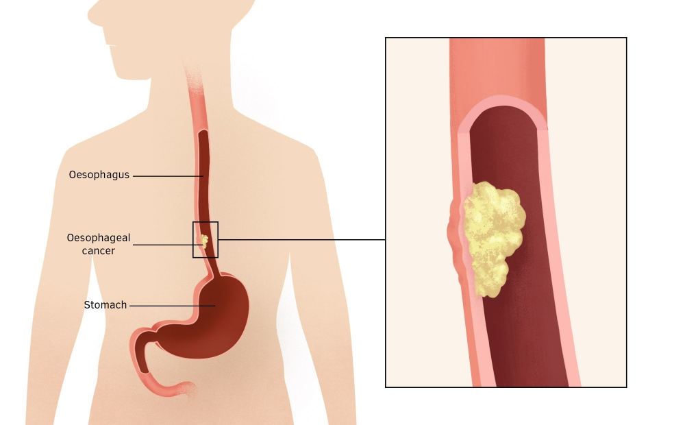 Clinical Research On Oesophageal And Upper