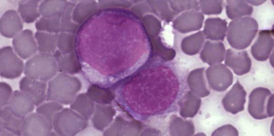 Leukaemia cells (credit: Wikimedia Commons