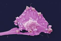 Breast cancer cell (credit: LRI EM Unit)