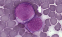 Leukaemia cells (credit: Wikimedia Commons)